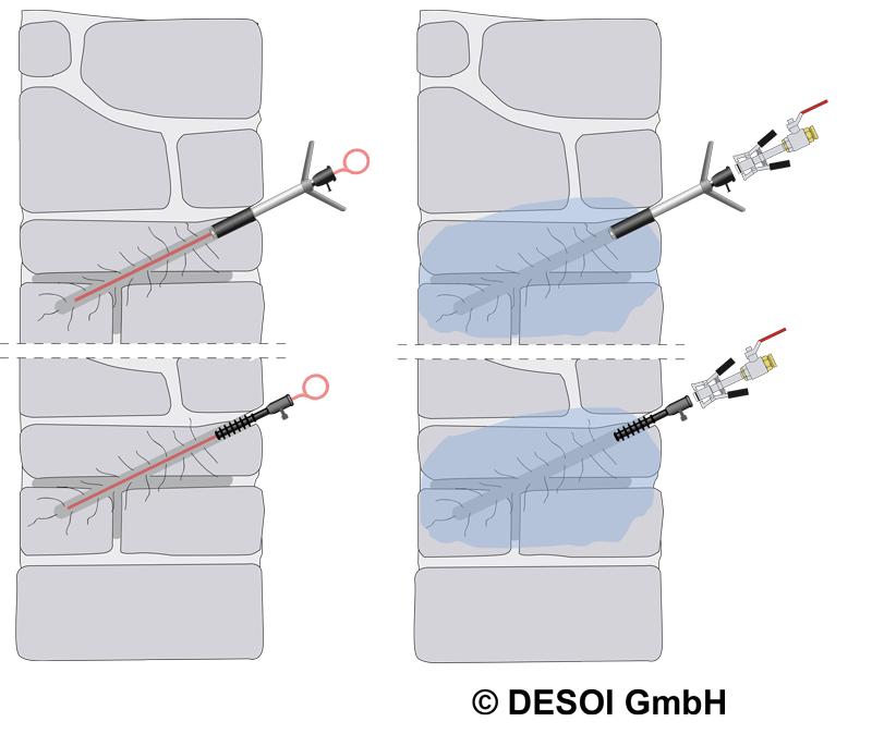 Bild_Druckinjektion_02 Horizontalabdichtung mittels Druckinjektion